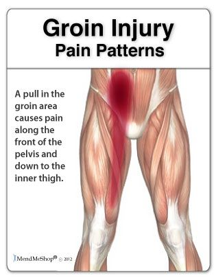 Groin Pain Pattern.png