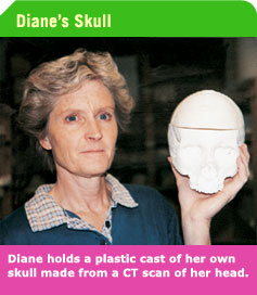 Diane_holds_plastic_cast_of_her_head.jpg