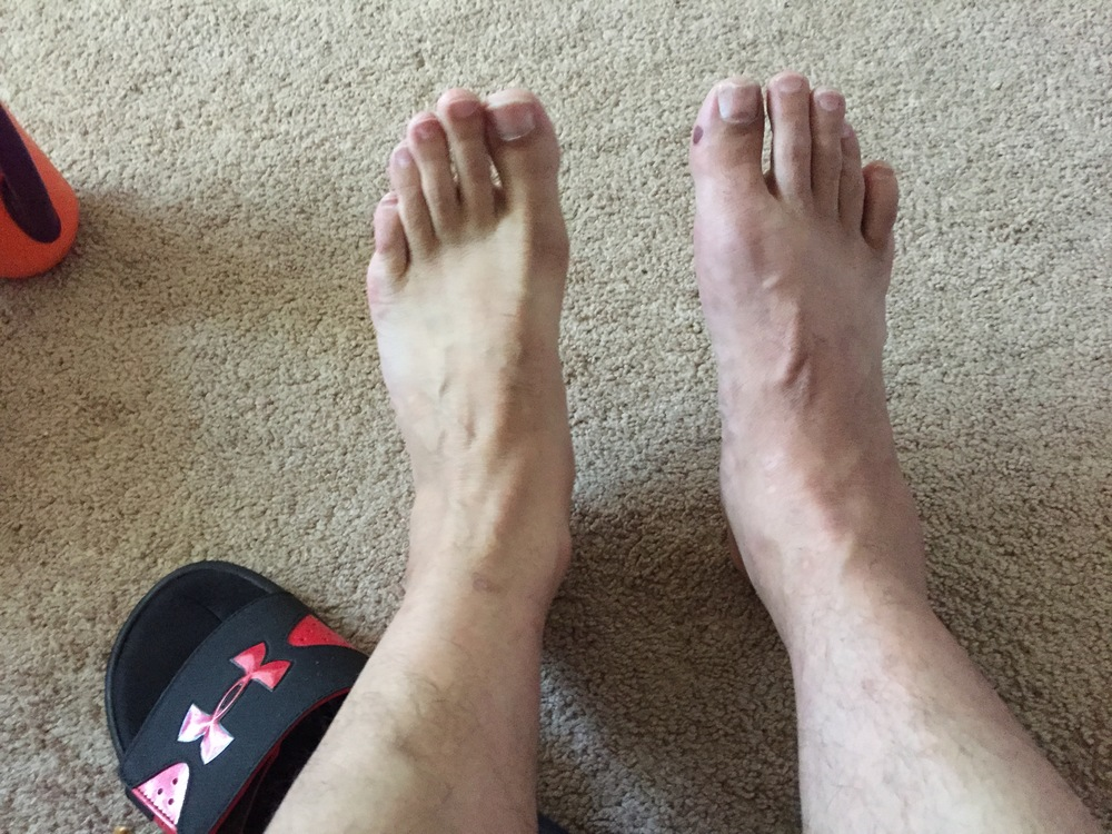 Redness and swelling on the right foot