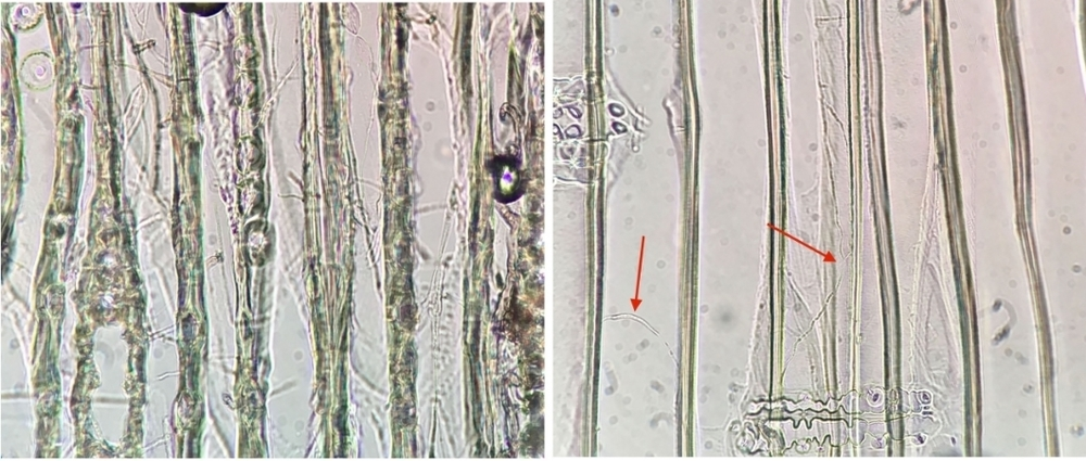 Photo 2 - The image on the left shows a network of wood decay hypae (i.e. root-like structures) in every wood cell at the 2' height of the glulam arch. The image on the right shows much lower levels of wood decay hyphae at the 3' height of the glulam arch.