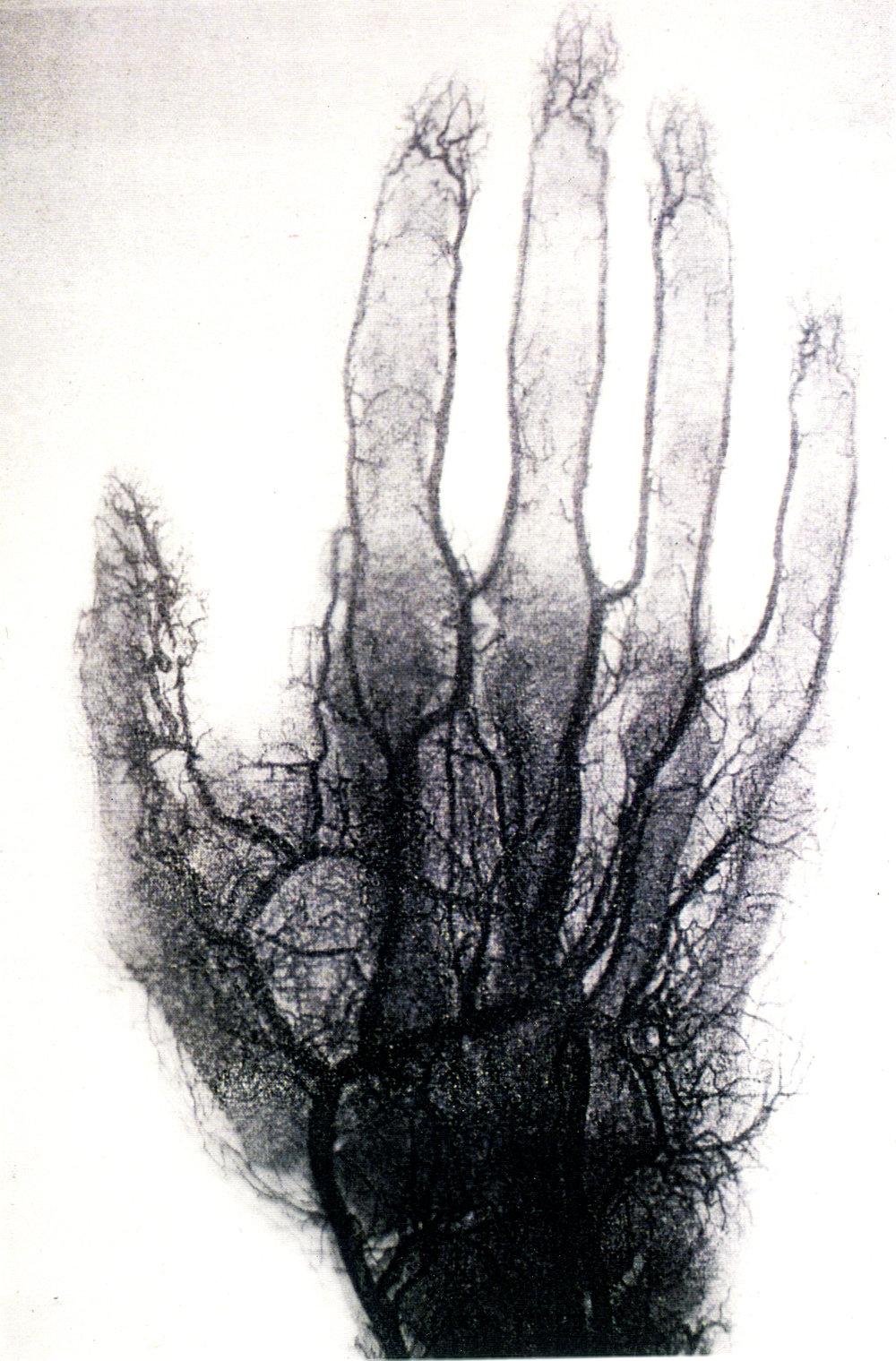 x-ray blood vessels copy.jpg