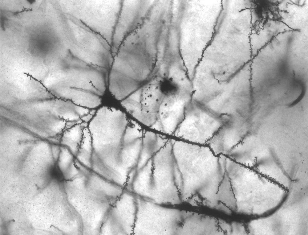1008px-pyramidal_hippocampal_neuron_40x.jpg