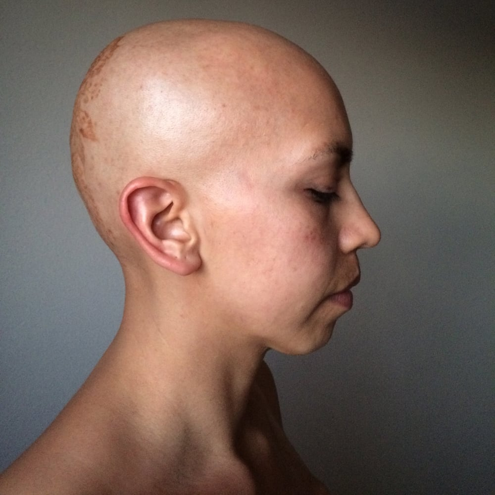 The Bald Project