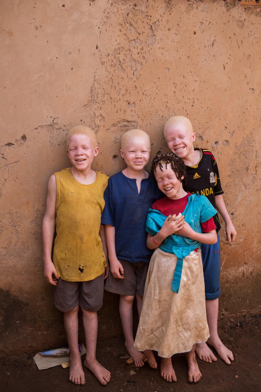 Child-Albino.jpg