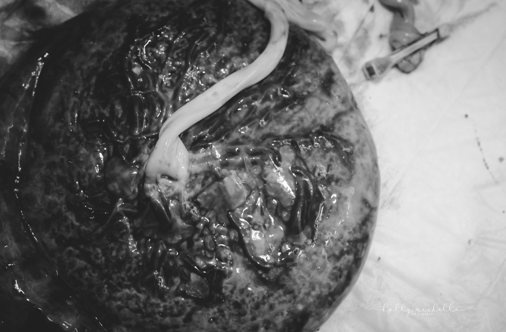 placenta from homebirth