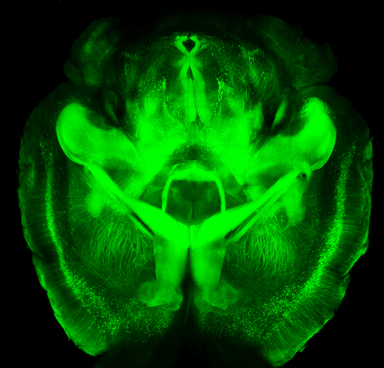 Sample image of an optically transparent brain using the CLARITY technique