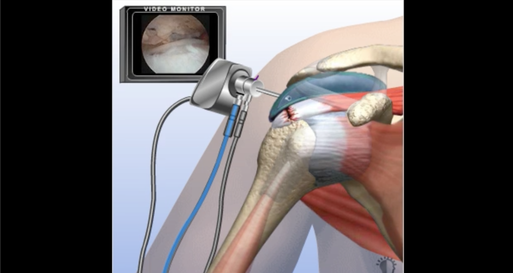 CLICK HERE TO VIEW THE ROTATOR CUFF TEAR VIDEO ANIMATION