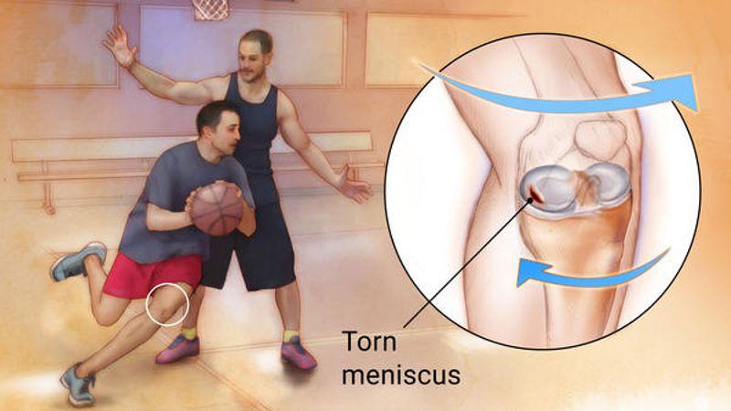 Is My Meniscus Torn? -
