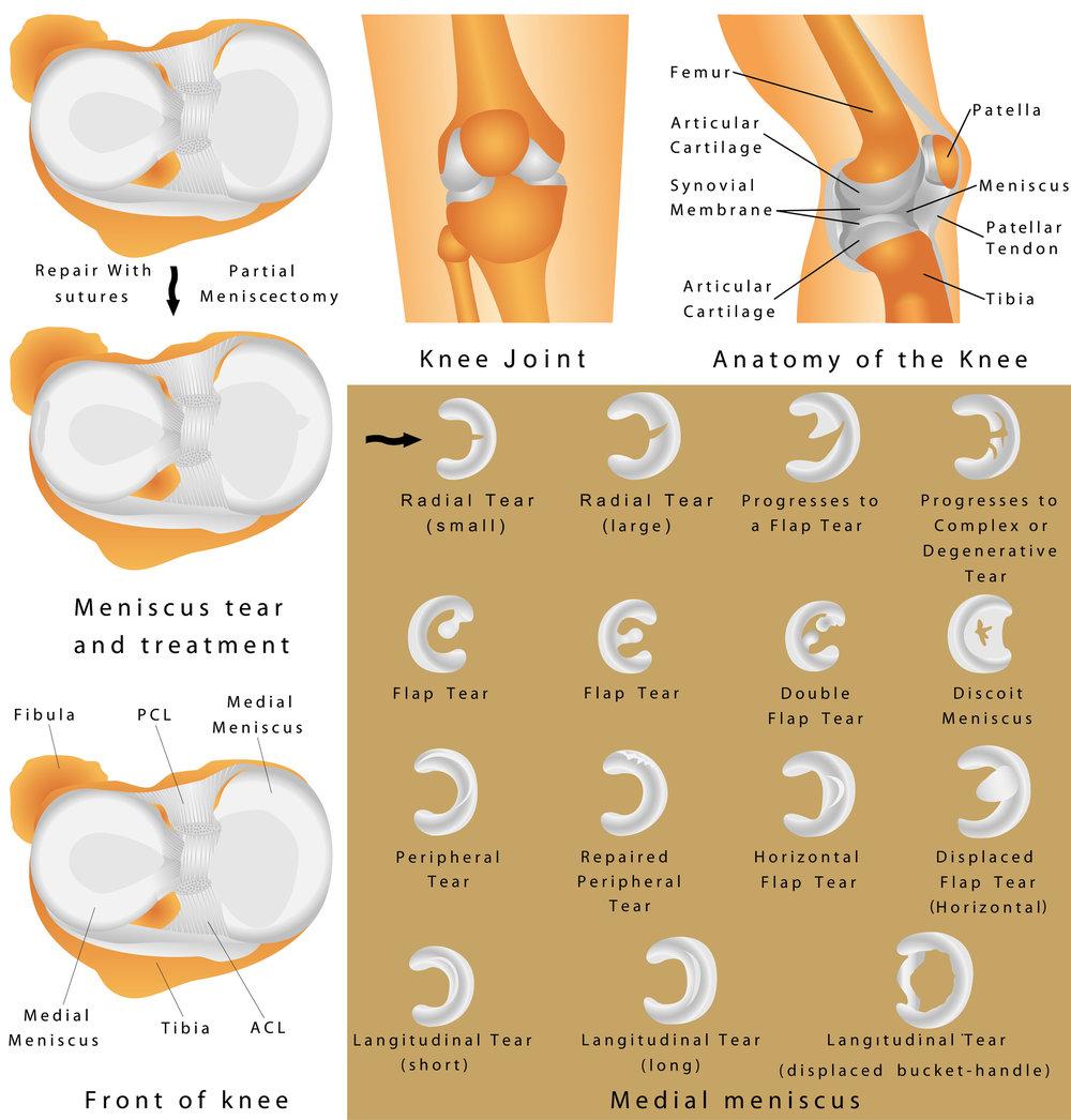medial-meniscus.jpg