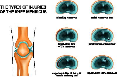 meniscus-treatments.png