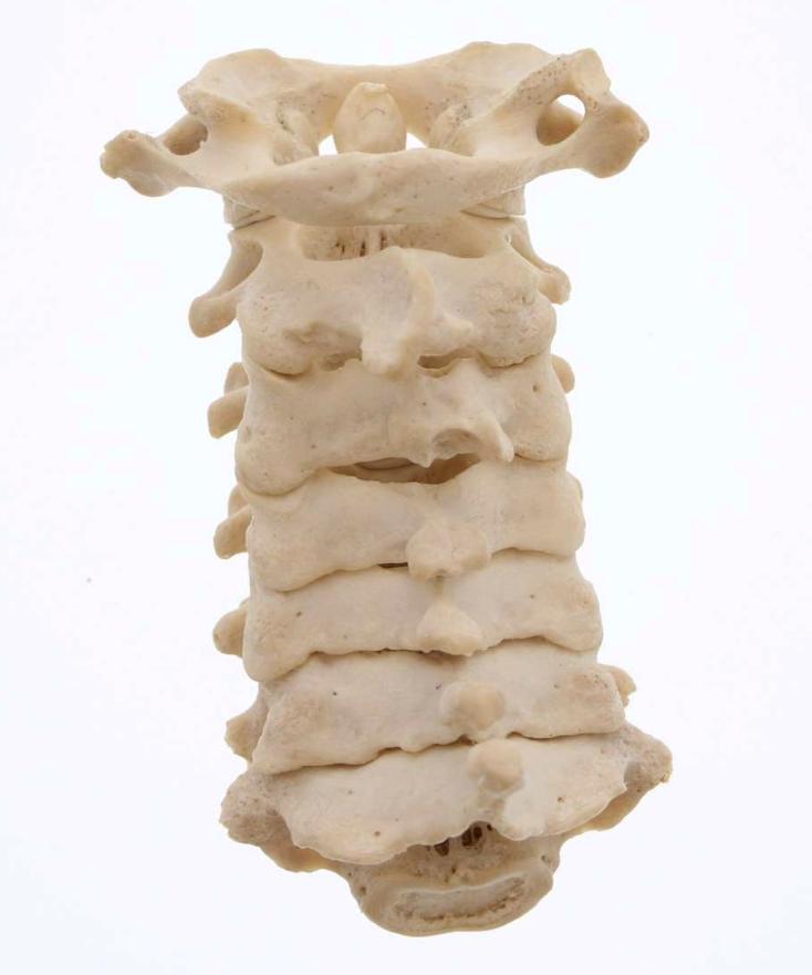 Cervical - 3D