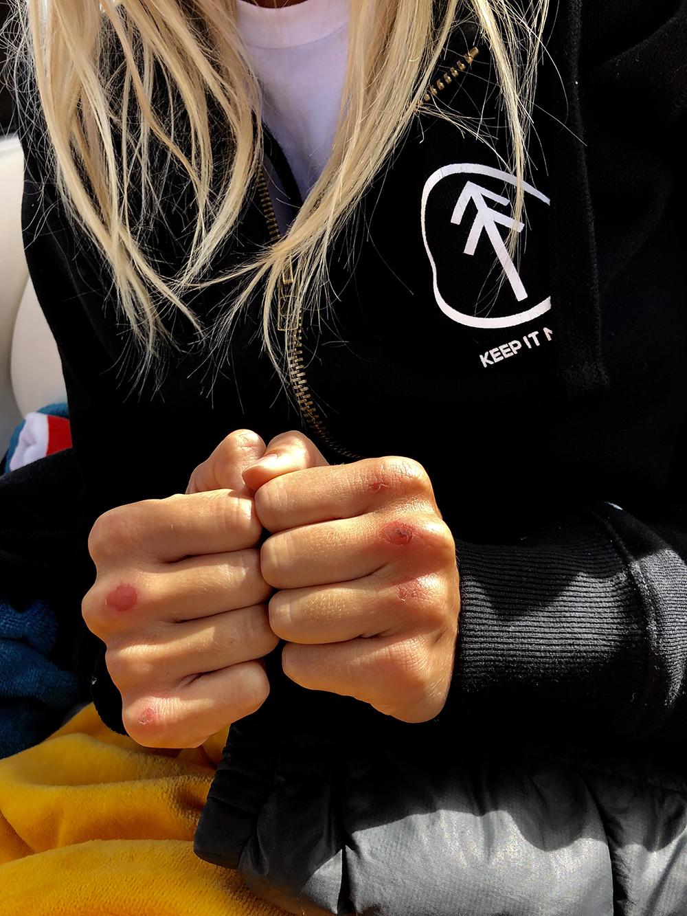 Elyse Knowles Knuckles .jpg