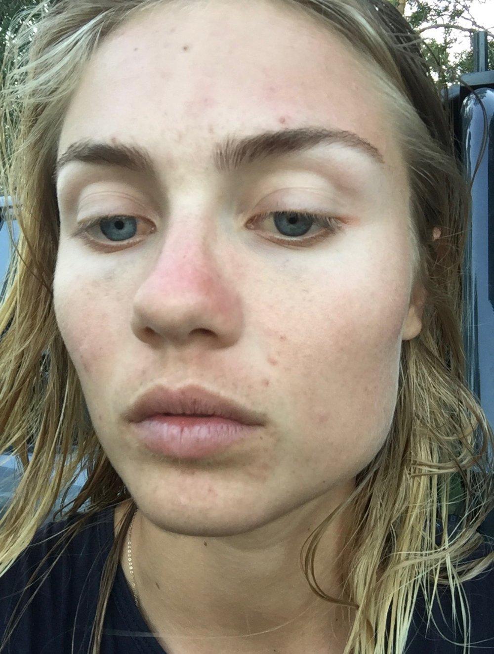 ELYSE KNOWLES Skin Battles Blog 2018 0.jpeg