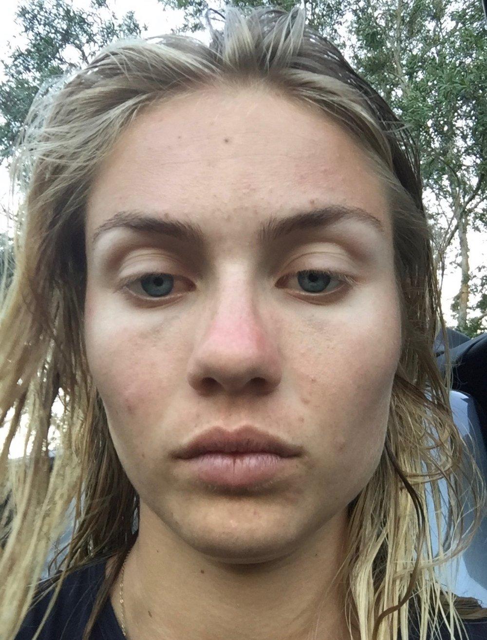 ELYSE KNOWLES Skin Battles Blog 2018 1.jpeg
