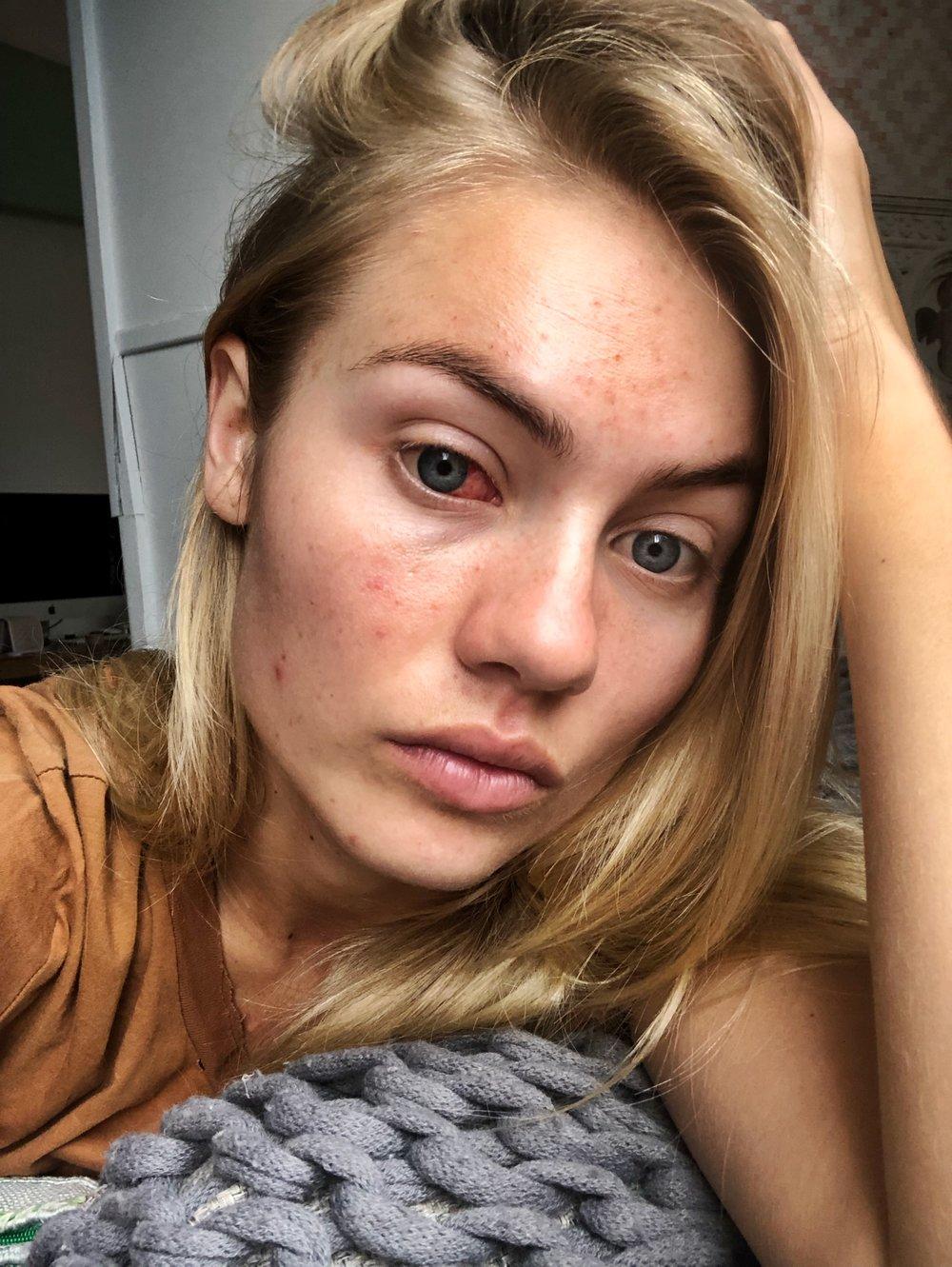 Elyse Knowkes Skin Battles.JPG