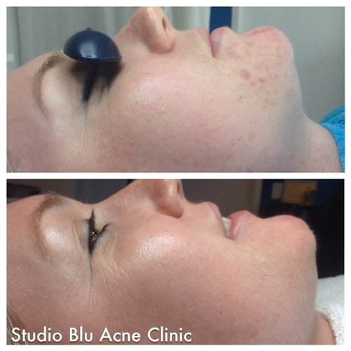 Studio Blu Acne Clinic, Before After, Amy (hormonal acne)