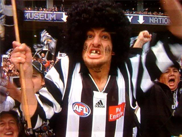 Most people think the Collingwood teeth thing is an overused joke. It's actually just  The Truth.