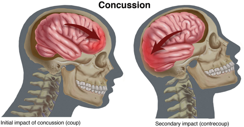 SPORTS THERAPY CONCUSSION ATHLETIC INJURY REHAB EXERCISE