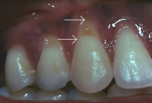 Tooth #6 with gum recession caused by traumatic toothbrushing