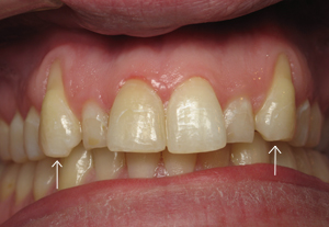 Teeth #6 and 11 before connective tissue grafts