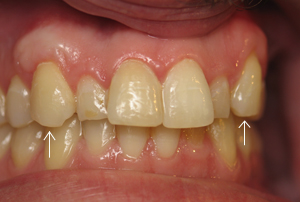 Teeth #6 and 11 six months after connective tissue grafts