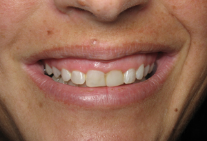 Gummy smile before esthetic crown lengthening on teeth #5-12