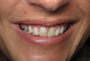 Two weeks after esthetic crown lengthening on teeth #5-12