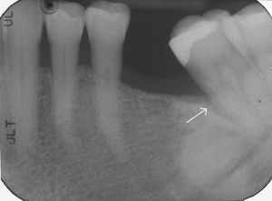 Dramatic bone fill three years after Emdogain regeneration surgery. 3-4mm probing depths.