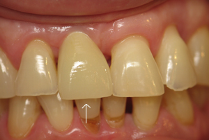 Tooth #8 restored with permanent crown