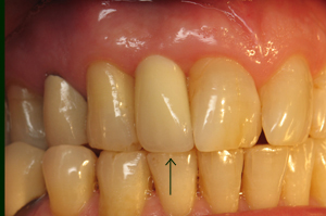 Tooth #7 restored with permanent crown