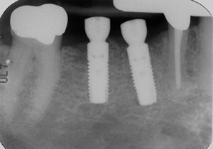 Teeth #29 and 30 at time of implant placement