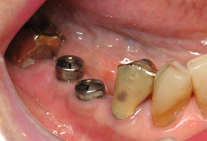 Teeth #29 and 30 eight weeks after implant placement, healing abutments in place