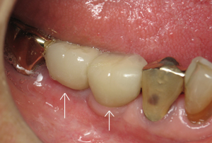 Teeth #29 and 30 restored with permanent crowns