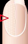 Nail Bed