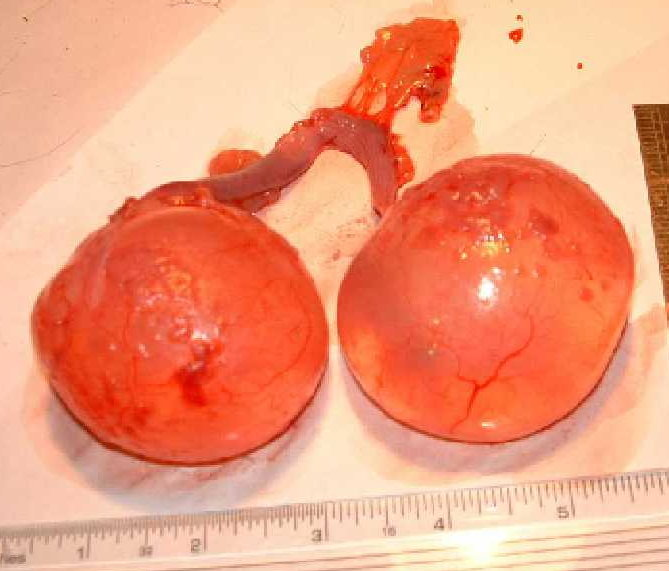 Bilateral ovarian cysts from a guinea pig.  PS. we now offer non-surgical options to manage ovarian cysts.