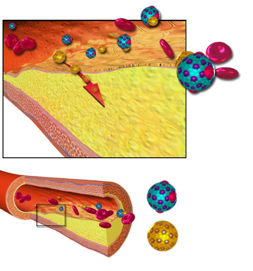 The formation of an atheroma by invasion of LDL particles into an inflamed artery wall inner lining (or intima).   From