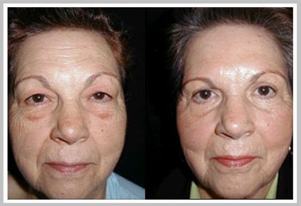 Antes y Después de Cirugía de Párpados