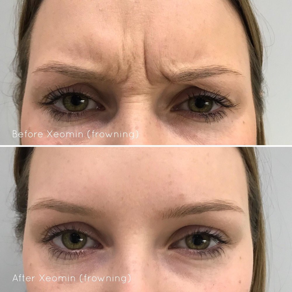 Xeomin® used to soften frown lines - *Please note results will vary between individual patients.