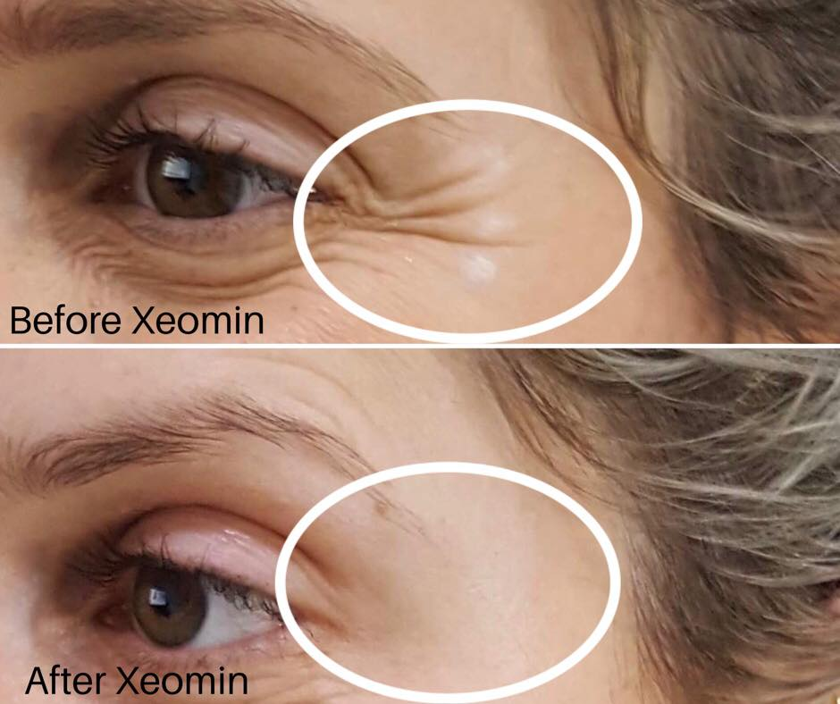 Xeomin® used to soften crow's feet around the eyes (while smiling) - *Please note results will vary between individual patients.