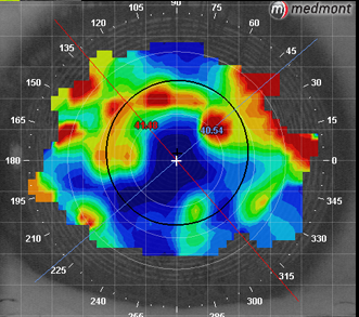 Medmont Video Tear Film Analysis