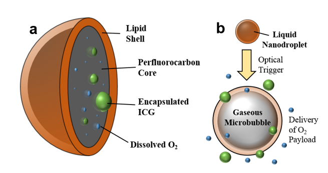 a ) Diagram of optically triggered O2­-carrying nanoparticles made from clinically approved materials.  b ) Upon activation the nanoparticles expel their contents