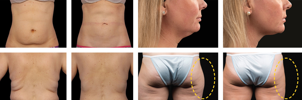 Before and After the CoolSculpting® treatment