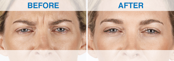 Xeomin_Before-After_Swan-Dermatology_2.png