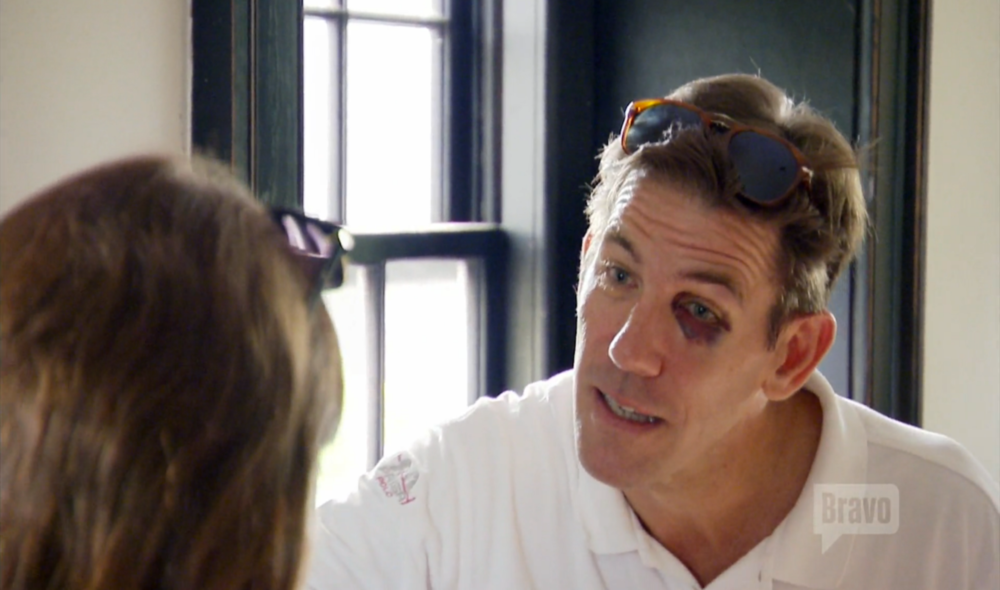southern-charm-thomas-ravenel-black-eye