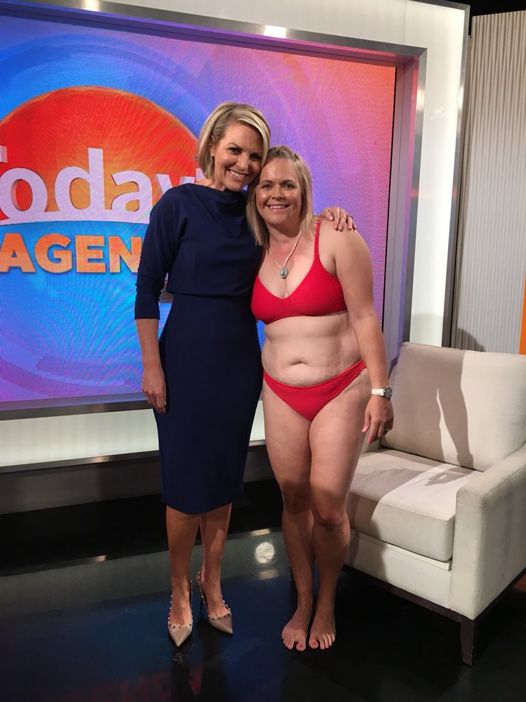 EMBRACE YOU   Body image activist, Taryn Brumfitt, aimed to stop the self loathing many Australian women feel after giving birth. A syndicated opinion piece in News Limited's mastheads on Mother's Day did the trick. This was followed by an unprecedented 9.5 minute interview on the Today Show wearing a bikini!