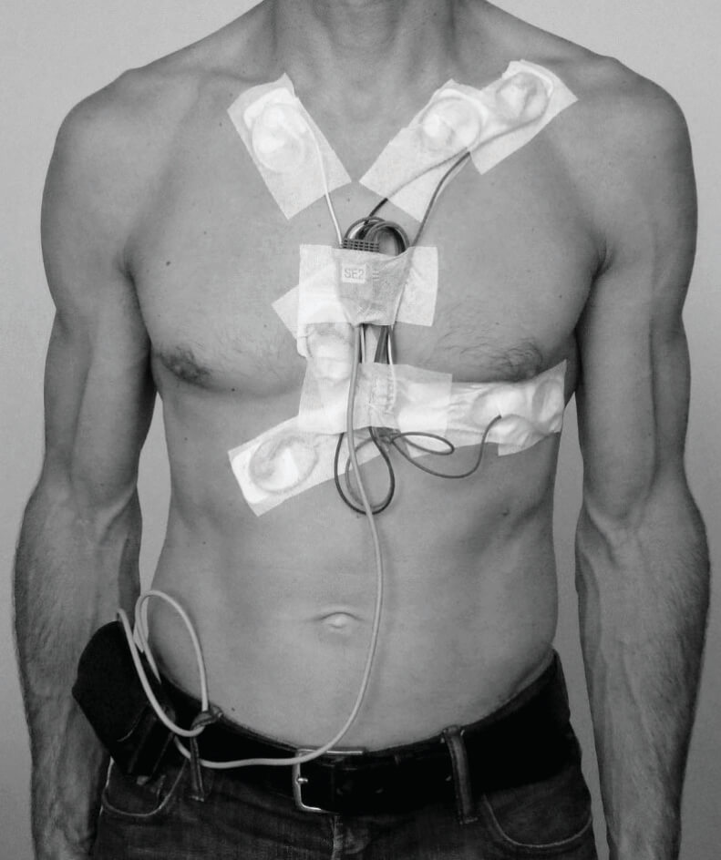 Conventional Holter monitor