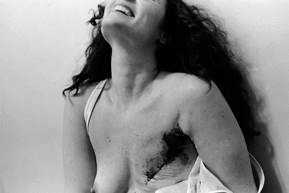 Mastectomy  Boston Hospital for Women Boston, MA.  1978