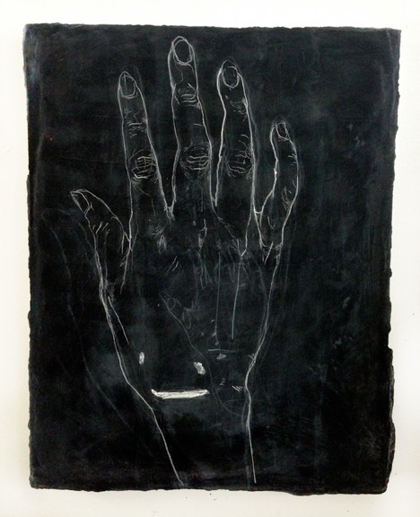AFTERZEUS, After Zeus, 2013, Chalk and acrylic on panel, 9 x 12 - Chalk drawing of artist's hand before suture removal and after suture removal on panel