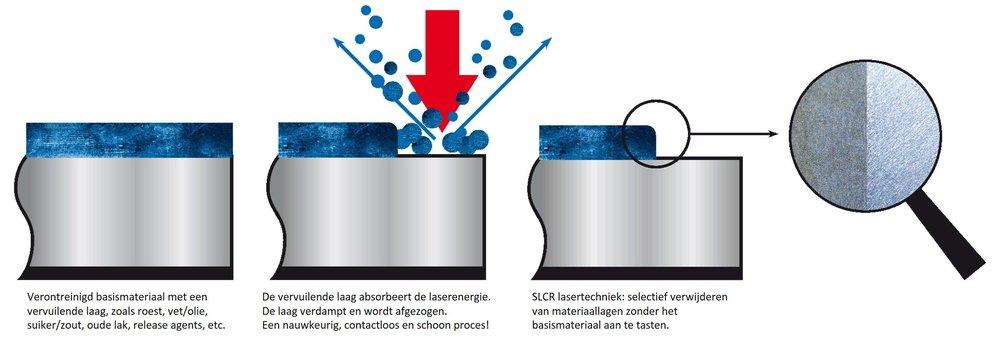 SLCR laser reinigen