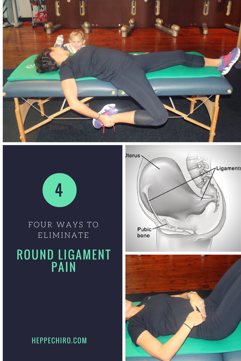 4 ways to eliminate round ligament pain  u2014 drs heppe